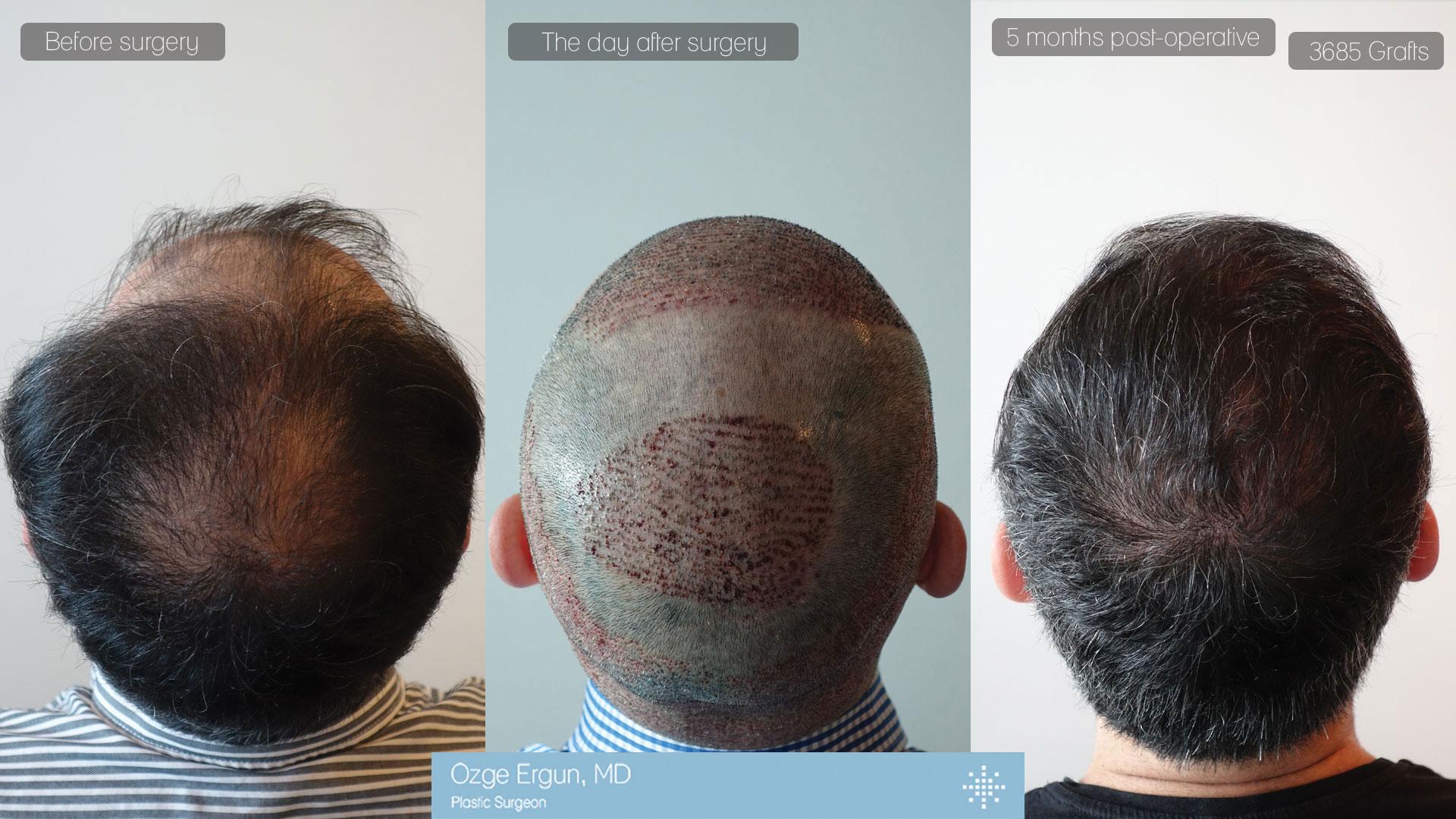 زراعة الشعر بتقنيه الاقتطاف
