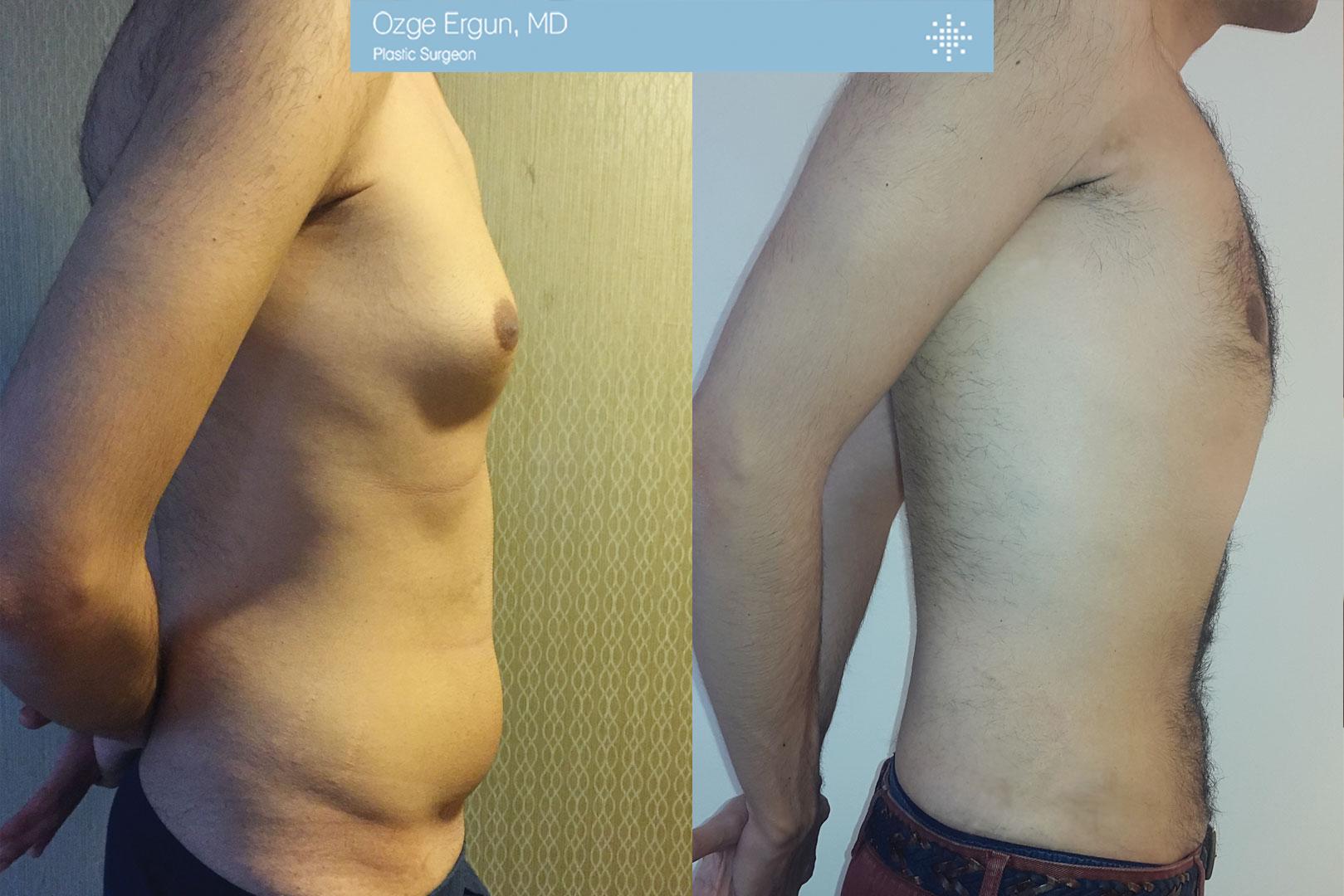 شفط الدهون بتقنية الفيزر+التثدي للرجال