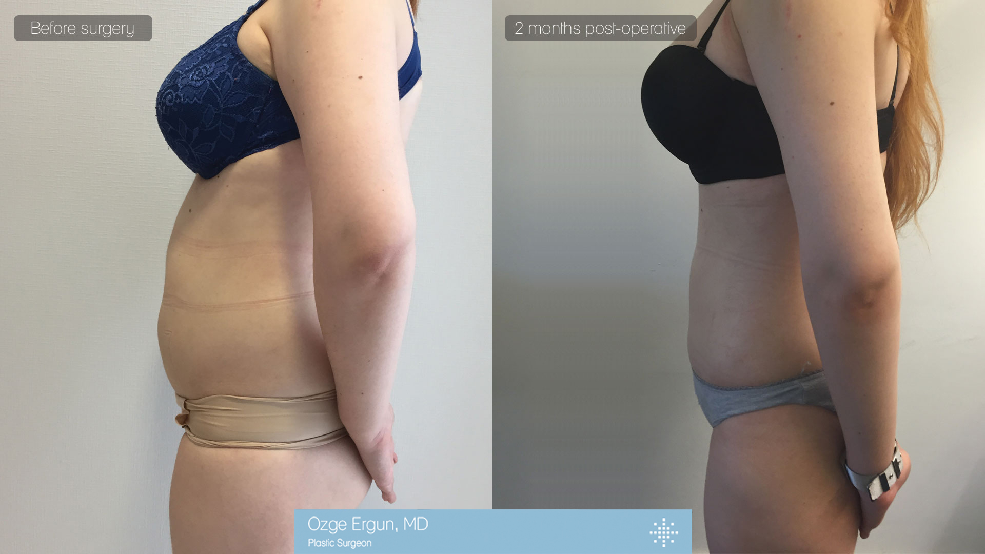 شفط الدهون بتقنية الفيزر