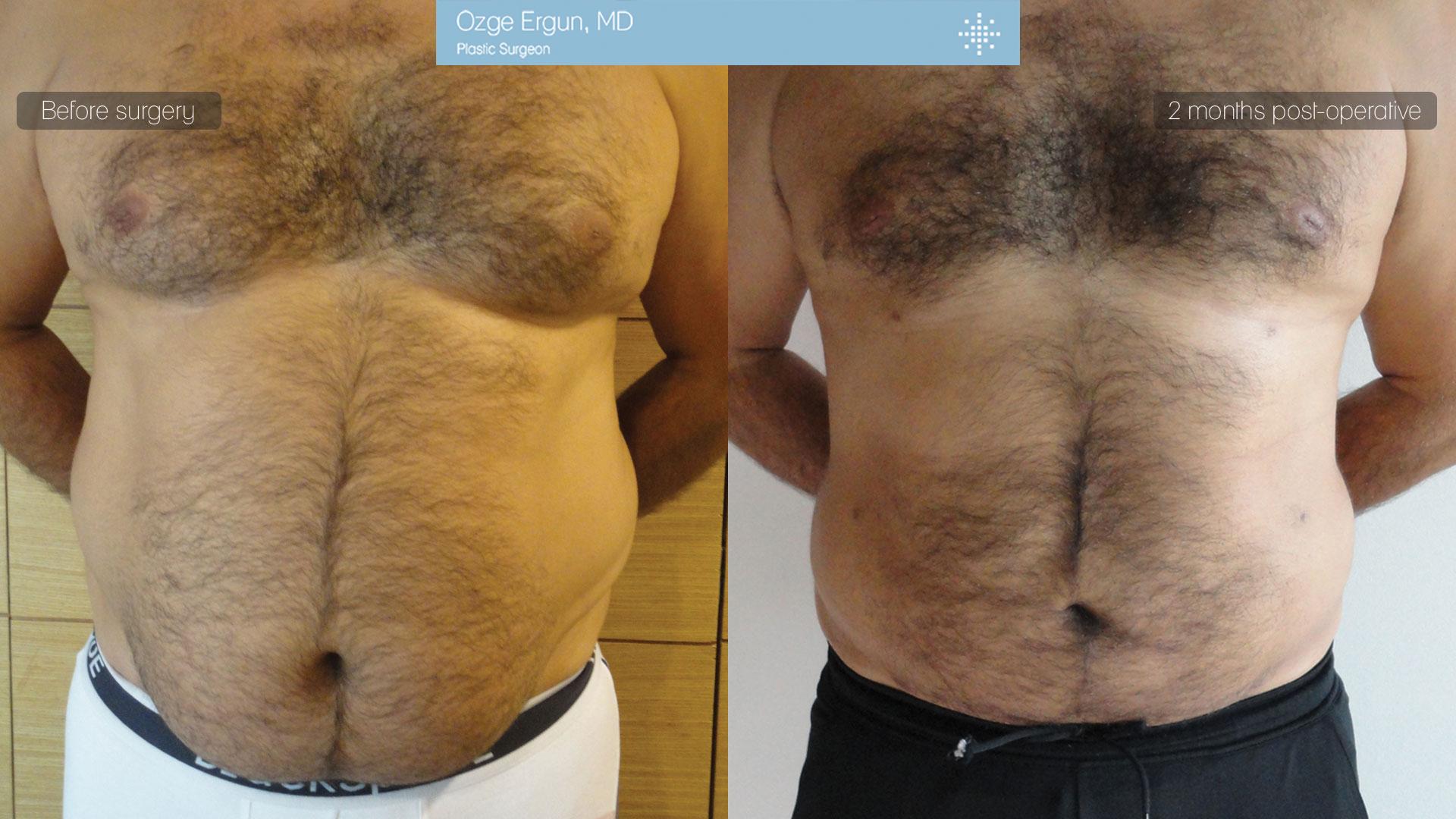 شفط الدهون بتقنية الفيزر+ التثدي للرجال