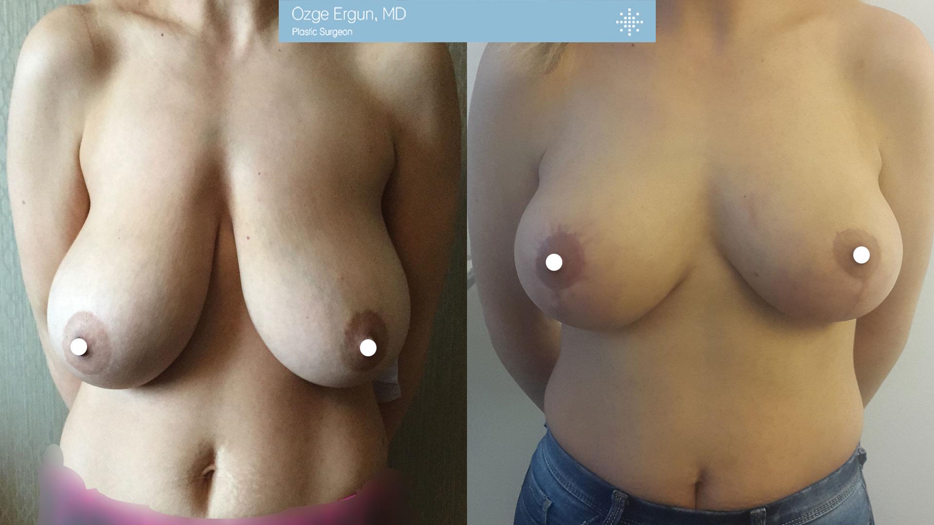 تجميل الثدي