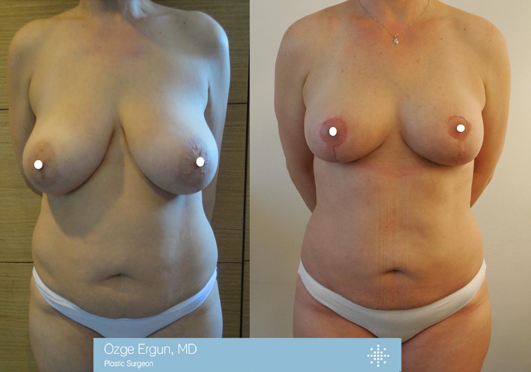 تجميل الثدي+ شفط دهون البطن