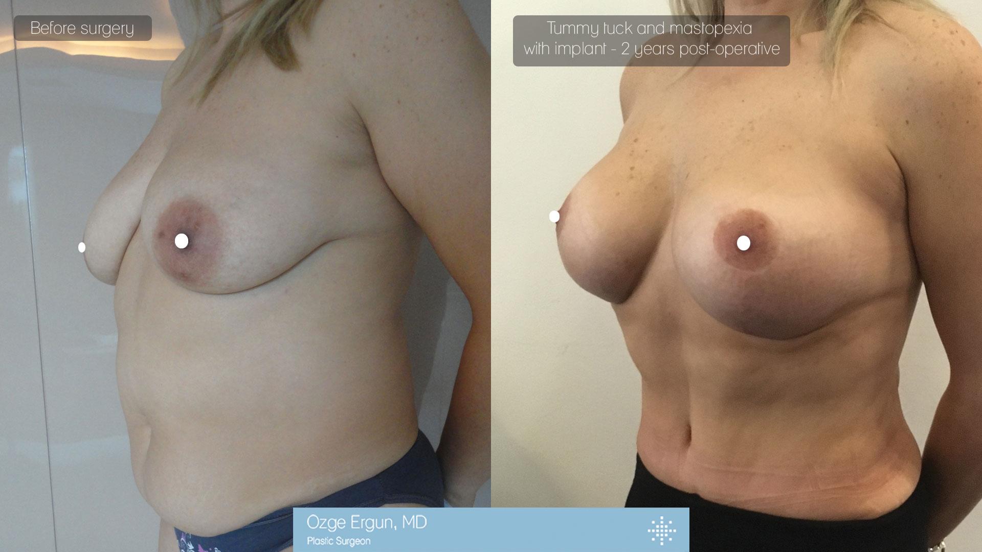 تجميل الثدي+ شد البطن