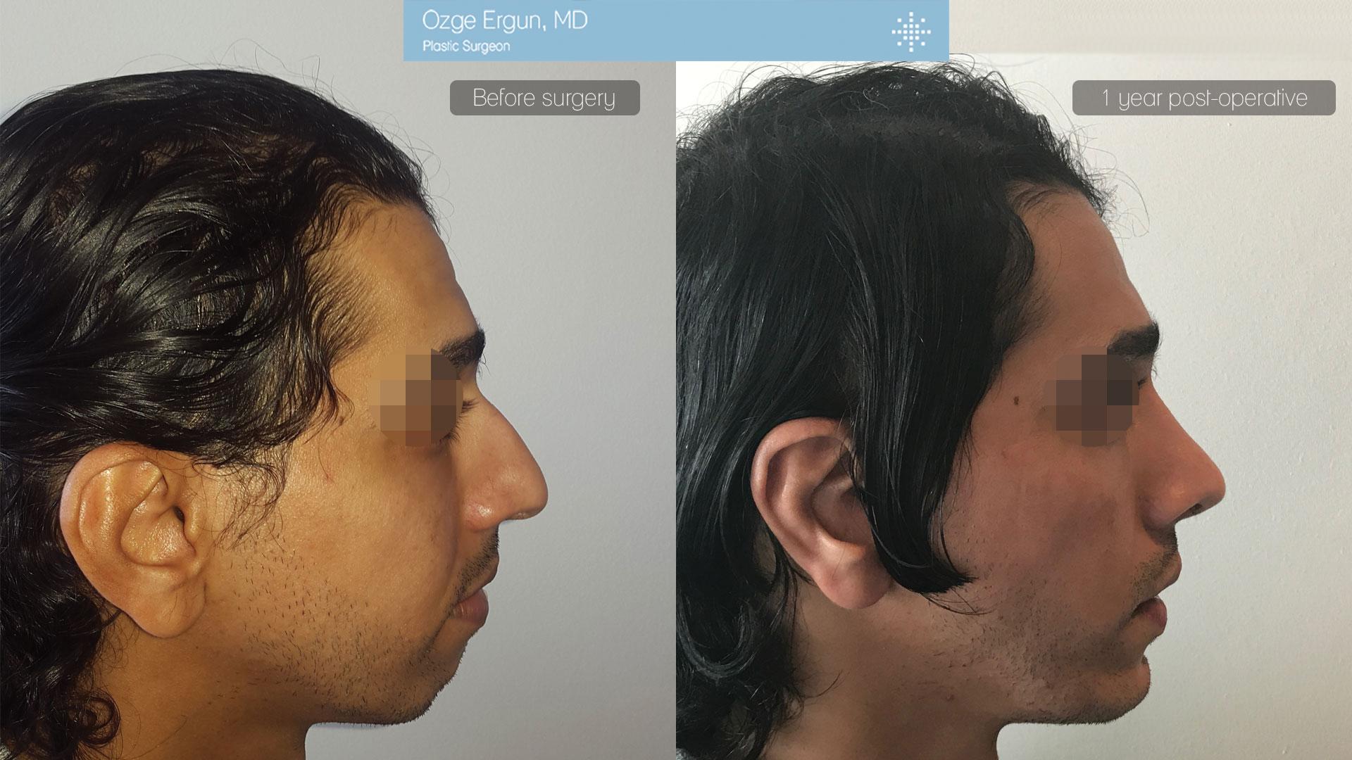 عملية تجميل الأنف +زراعة الذقن +جراحه الأذن