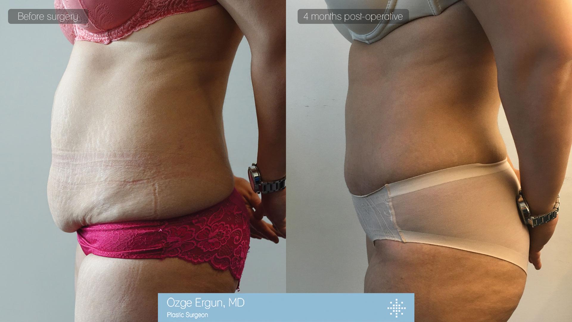شد البطن & شفط الدهون بتقنية الفيزر
