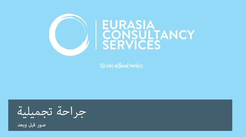 plasticsurgery arabic banner
